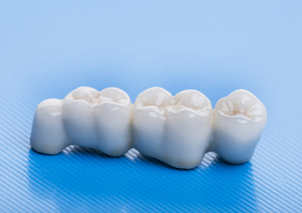 Dental Bridges San Ramon, CA